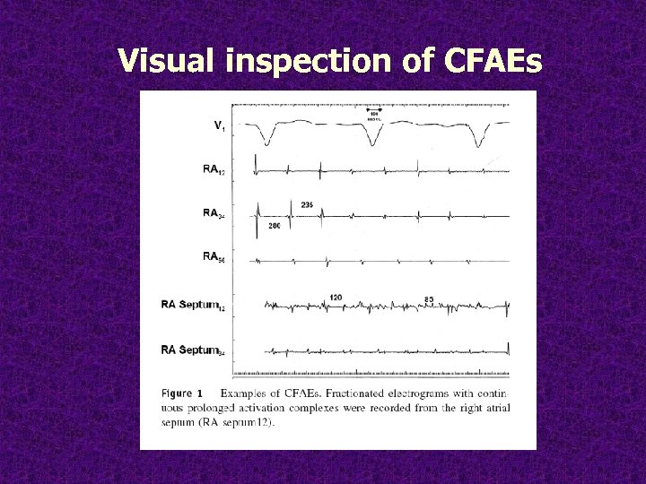 Visual inspection of CFAEs
