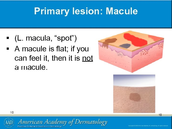 """Primary lesion: Macule § (L. macula, """"spot"""") § A macule is flat; if you"""