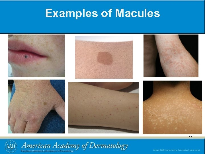 Examples of Macules 11 11