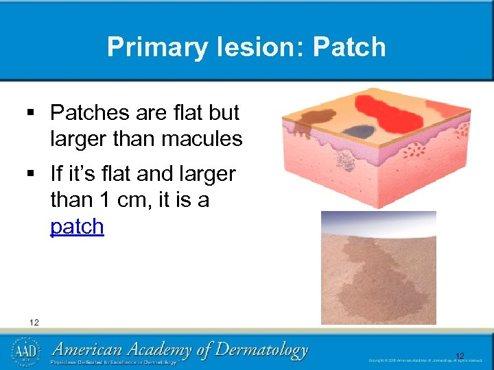 Primary lesion: Patch § Patches are flat but larger than macules § If it's