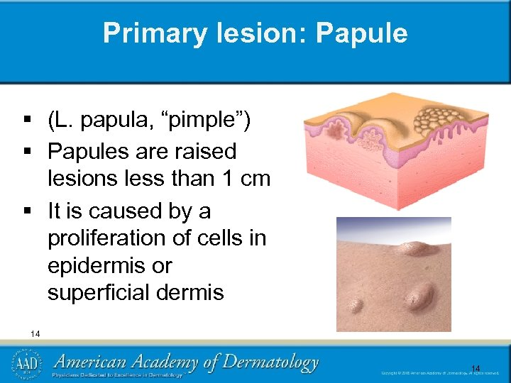 """Primary lesion: Papule § (L. papula, """"pimple"""") § Papules are raised lesions less than"""