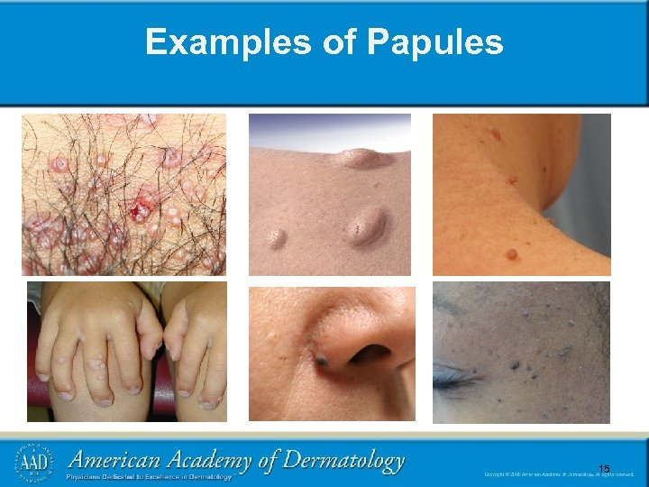 Examples of Papules 15 15