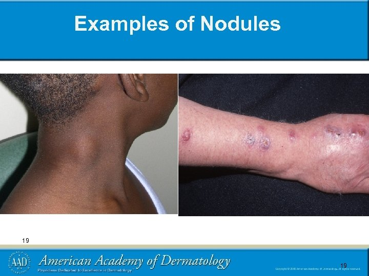 Examples of Nodules 19 19