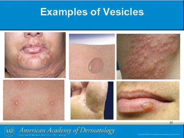 Examples of Vesicles 21 21