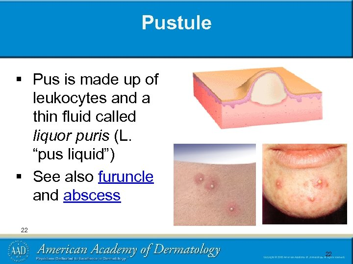 Pustule § Pus is made up of leukocytes and a thin fluid called liquor