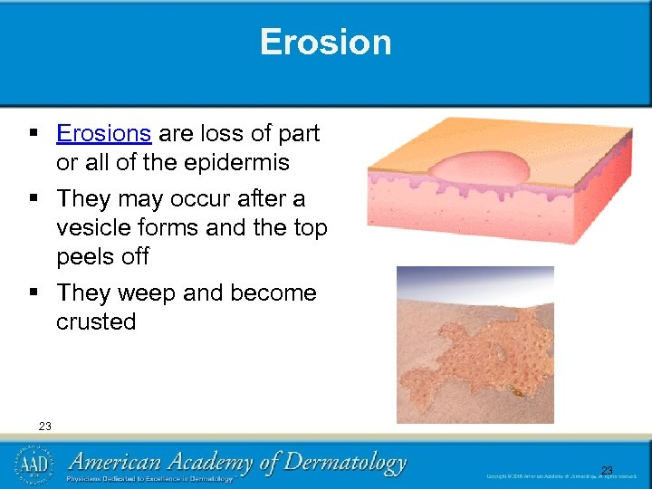Erosion § Erosions are loss of part or all of the epidermis § They