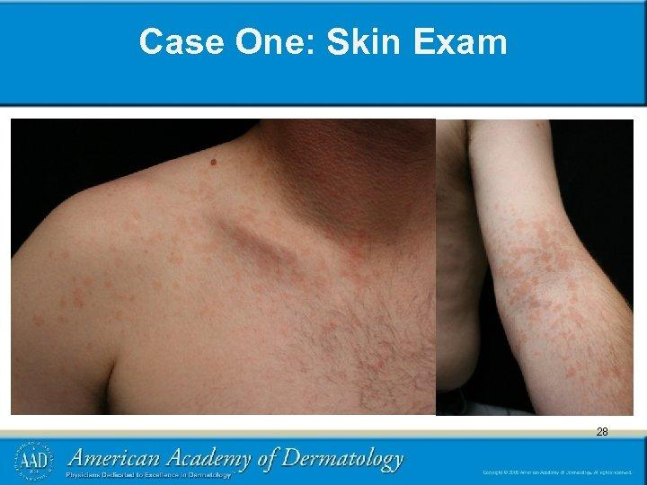 Case One: Skin Exam 28 28