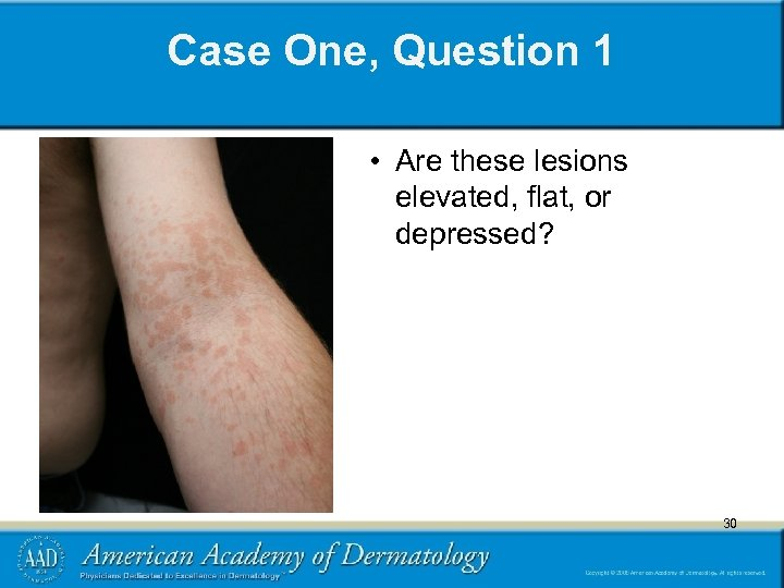 Case One, Question 1 • Are these lesions elevated, flat, or depressed? 30 30