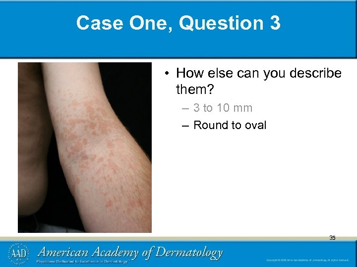 Case One, Question 3 • How else can you describe them? – 3 to