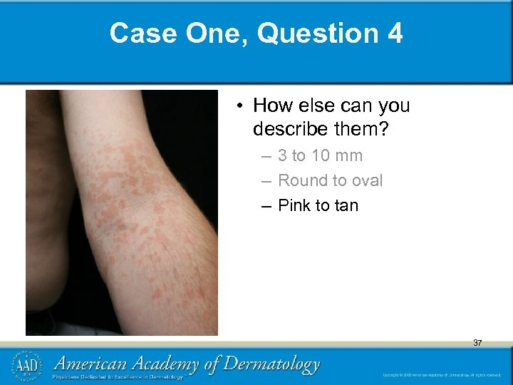 Case One, Question 4 • How else can you describe them? – 3 to