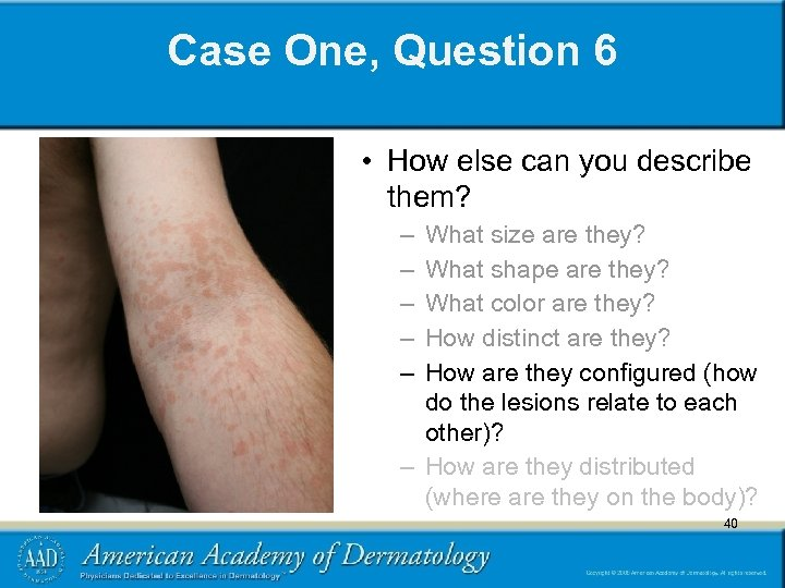 Case One, Question 6 • How else can you describe them? – – –