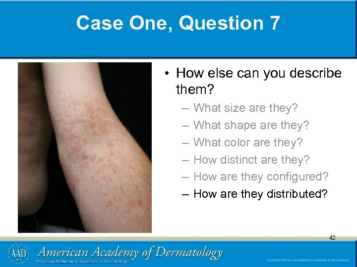 Case One, Question 7 • How else can you describe them? – – –