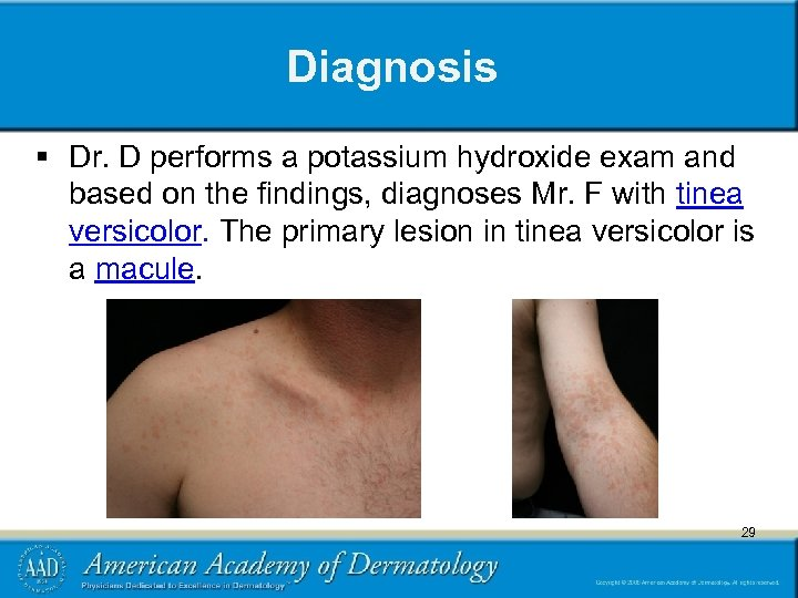 Diagnosis § Dr. D performs a potassium hydroxide exam and based on the findings,
