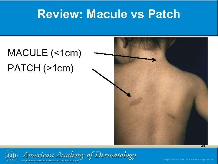 Review: Macule vs Patch MACULE (<1 cm) PATCH (>1 cm) 48 48