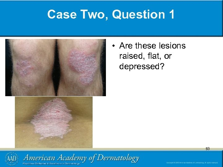 Case Two, Question 1 • Are these lesions raised, flat, or depressed? 53 53