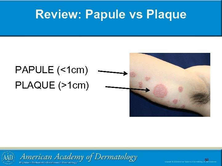 Review: Papule vs Plaque PAPULE (<1 cm) PLAQUE (>1 cm) 58 58