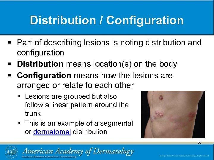 Distribution / Configuration § Part of describing lesions is noting distribution and configuration §