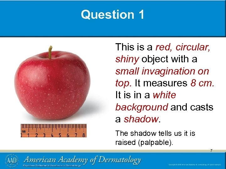Question 1 This is a red, circular, shiny object with a small invagination on