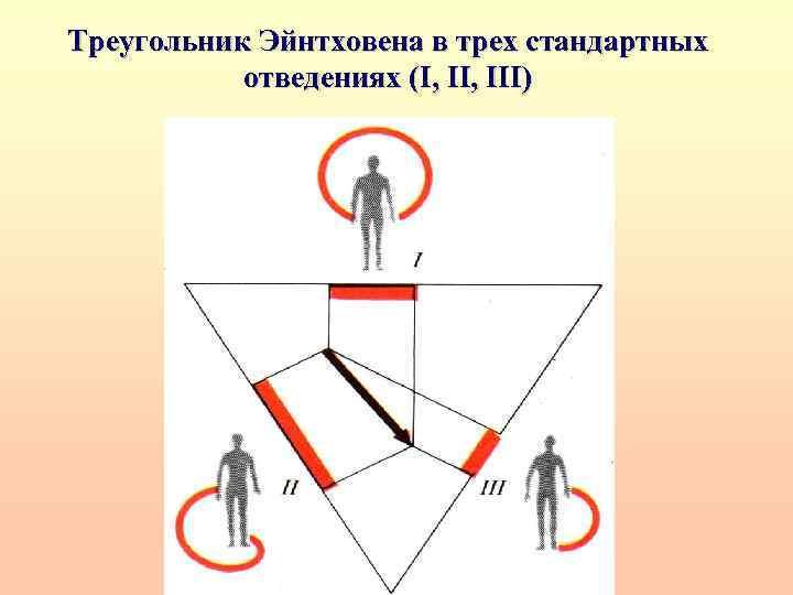 Треугольник Эйнтховена в трех стандартных отведениях (I, III)