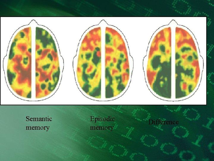 Semantic memory Episodic memory Difference