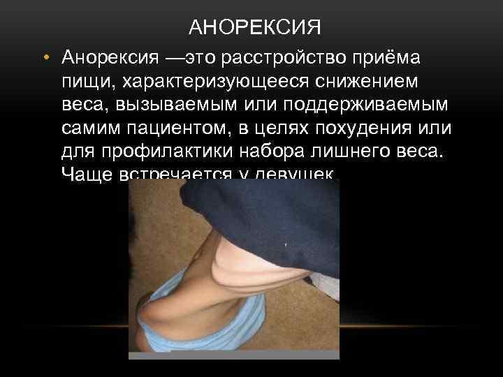 АНОРЕКСИЯ • Анорексия —это расстройство приёма пищи, характеризующееся снижением веса, вызываемым или поддерживаемым самим