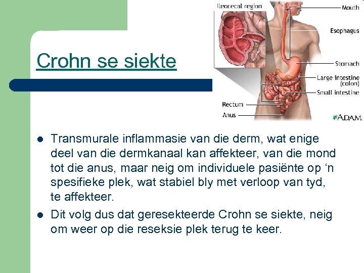 Crohn se siekte l l Transmurale inflammasie van die derm, wat enige deel van