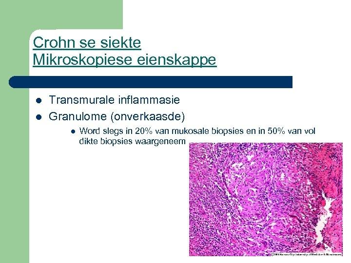 Crohn se siekte Mikroskopiese eienskappe l l Transmurale inflammasie Granulome (onverkaasde) l Word slegs