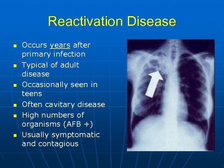 Reactivation Disease n n n Occurs years after primary infection Typical of adult disease
