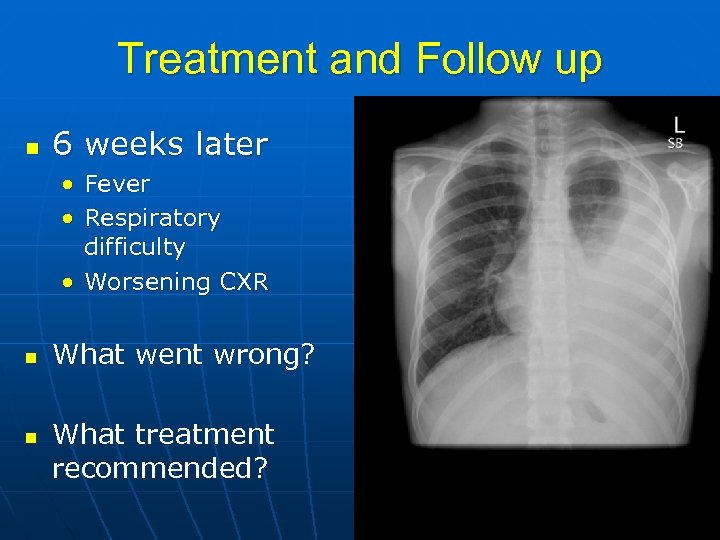 Treatment and Follow up n 6 weeks later • Fever • Respiratory difficulty •