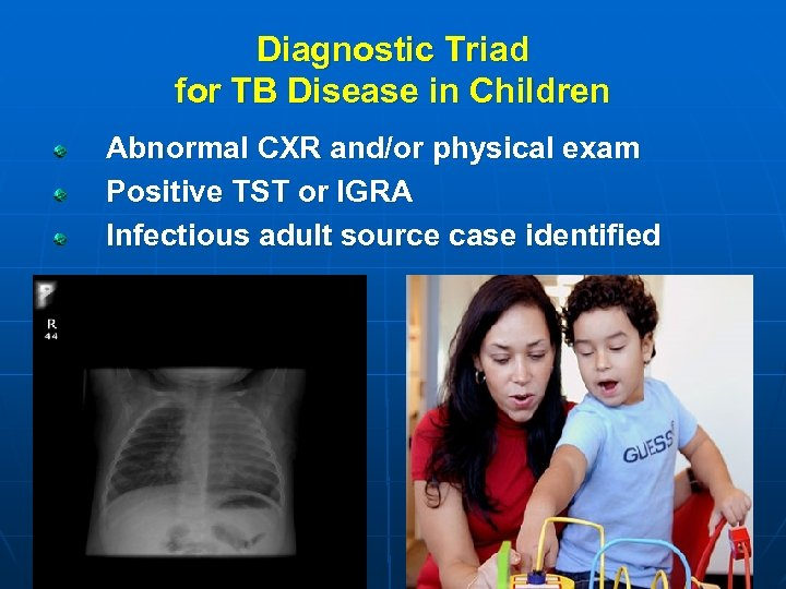 Diagnostic Triad for TB Disease in Children Abnormal CXR and/or physical exam Positive TST