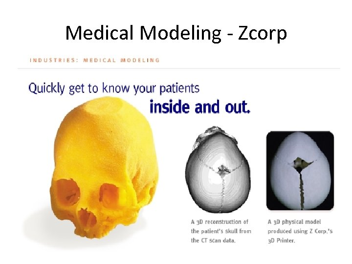 Medical Modeling - Zcorp