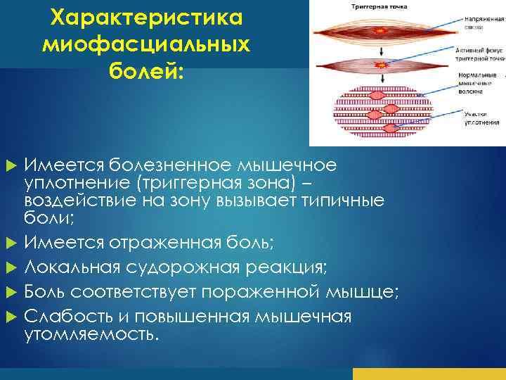 Характеристика миофасциальных болей: Имеется болезненное мышечное уплотнение (триггерная зона) – воздействие на зону вызывает