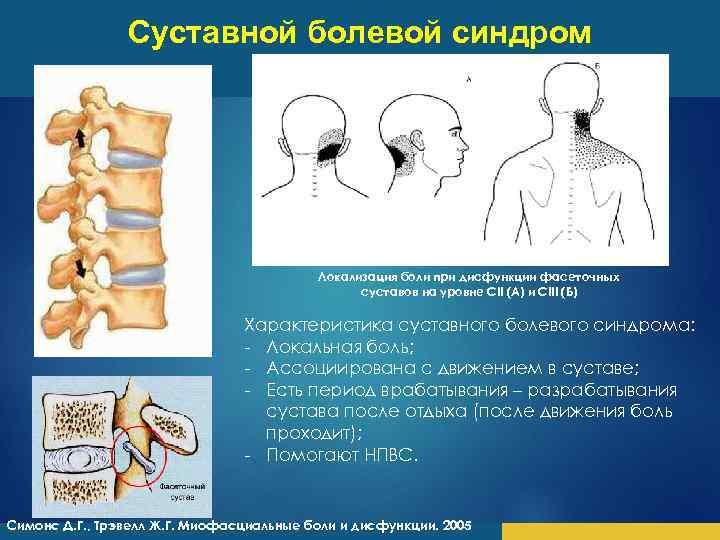Суставной болевой синдром Локализация боли при дисфункции фасеточных суставов на уровне СII (А) и