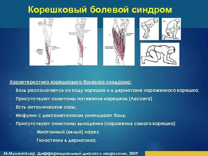 Корешковый болевой синдром Характеристика корешкового болевого синдрома: - Боль располагается по ходу корешка и