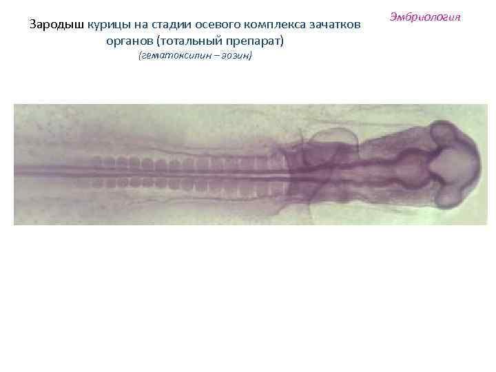 Зародыш курицы на стадии осевого комплекса зачатков органов (тотальный препарат) (гематоксилин – эозин) Эмбриология