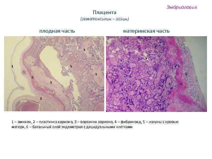 Эмбриология Плацента (гематоксилин – эозин) плодная часть материнская часть 3 5 1 5 3