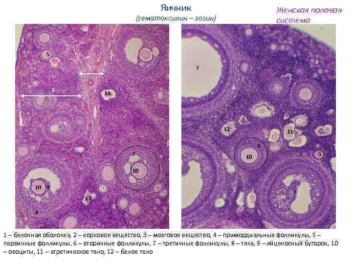 Яичник Женская половая система (гематоксилин – эозин) 1 5 3 2 4 7 8