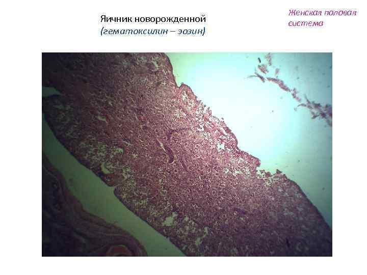 Яичник новорожденной (гематоксилин – эозин) Женская половая система