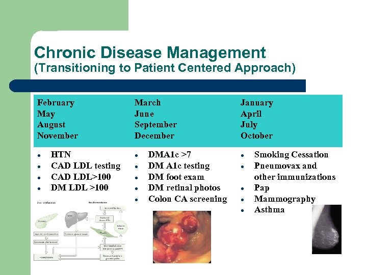 Chronic Disease Management (Transitioning to Patient Centered Approach) February May August November HTN CAD