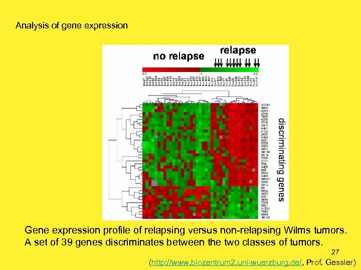 Analysis of gene expression Gene expression profile of relapsing versus non-relapsing Wilms tumors. A