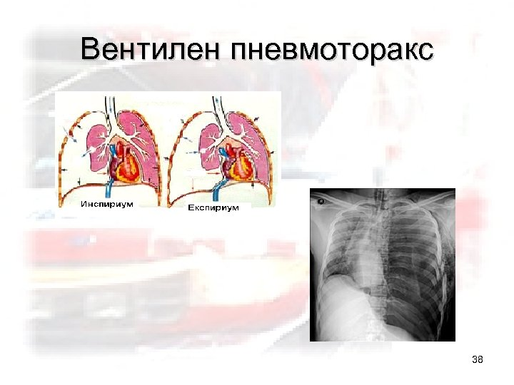 Вентилен пневмоторакс 38
