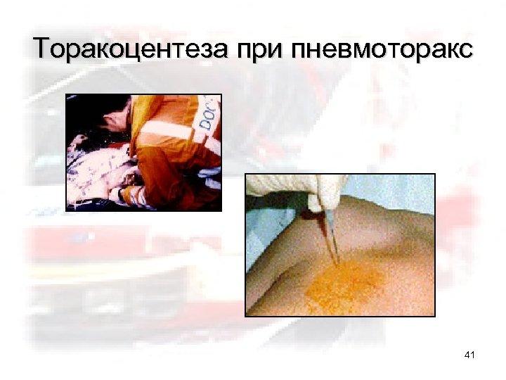 Торакоцентеза при пневмоторакс 41