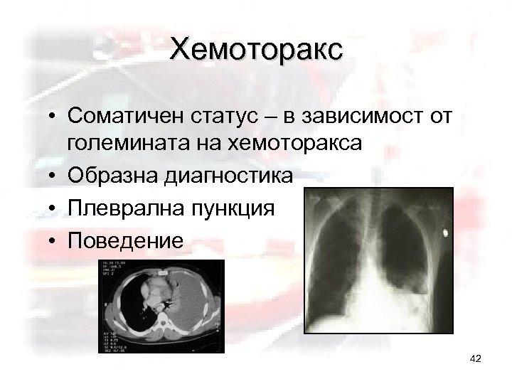 Хемоторакс • Соматичен статус – в зависимост от големината на хемоторакса • Образна диагностика