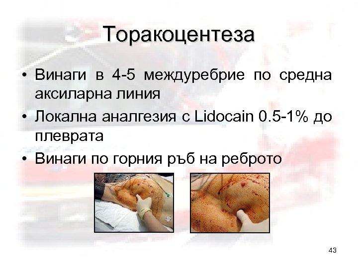 Торакоцентеза • Винаги в 4 -5 междуребрие по средна аксиларна линия • Локална аналгезия