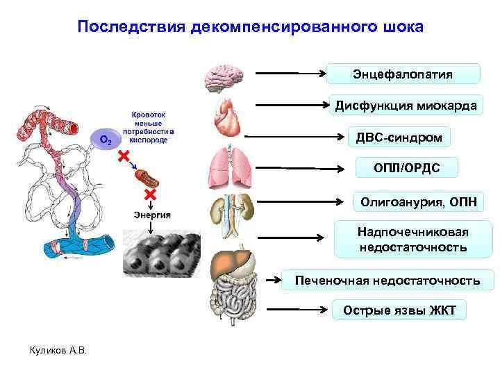Последствия декомпенсированного шока Энцефалопатия Дисфункция миокарда ДВС-синдром ОПЛ/ОРДС Олигоанурия, ОПН Надпочечниковая недостаточность Печеночная недостаточность