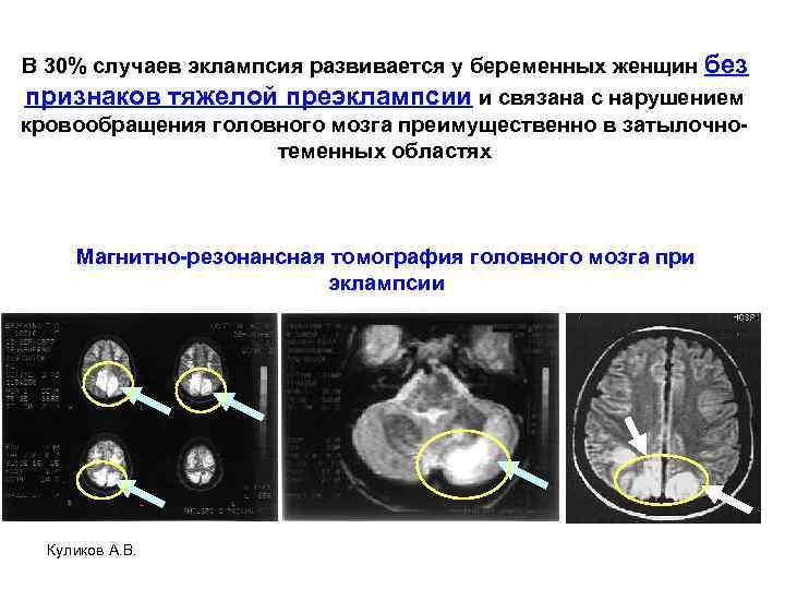 В 30% случаев эклампсия развивается у беременных женщин без признаков тяжелой преэклампсии и связана
