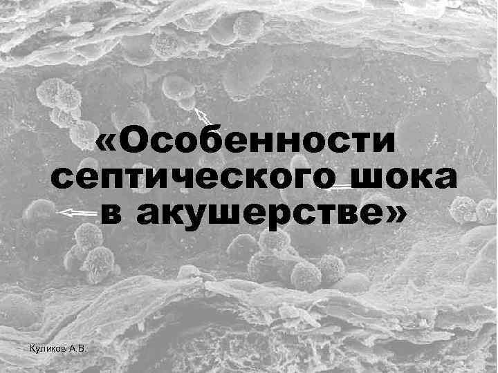 «Особенности септического шока в акушерстве» Куликов А. В.