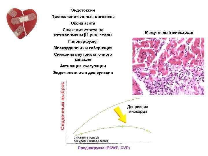 Эндотоксин Провоспалительные цитокины Оксид азота Снижение ответа на катехоламины 1 -рецепторы Гипоперфузия Миокардиальная гибернация