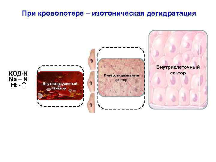 При кровопотере – изотоническая дегидратация Коллоиды КОД-N Na – N Ht - Интерстициальный сектор