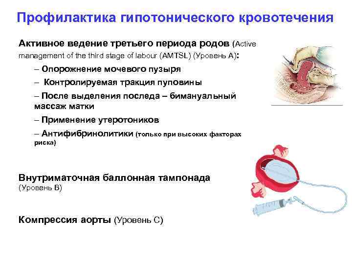 Профилактика гипотонического кровотечения Активное ведение третьего периода родов (Active management of the third stage